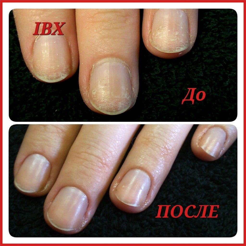 Можно ли нарастить ногти на обгрызанные ЖИ Женская